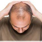 Trị hói đầu có bị rụng lại không?