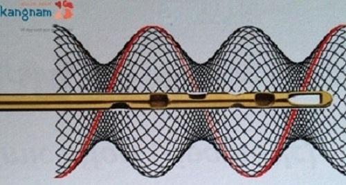 giảm mỡ Lipo Matic 3D