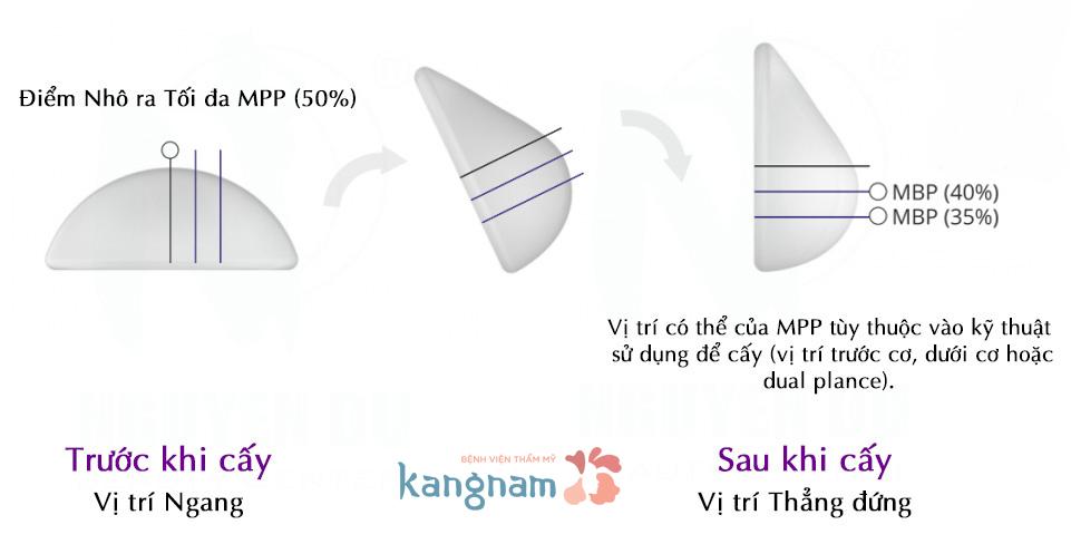 review-cac-loai-tui-don-nang-nguc-hien-nay-4