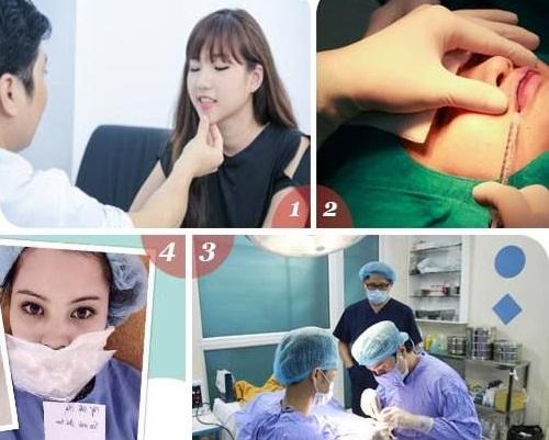 Phẫu thuật tạo môi trái tim ở đâu đẹp5