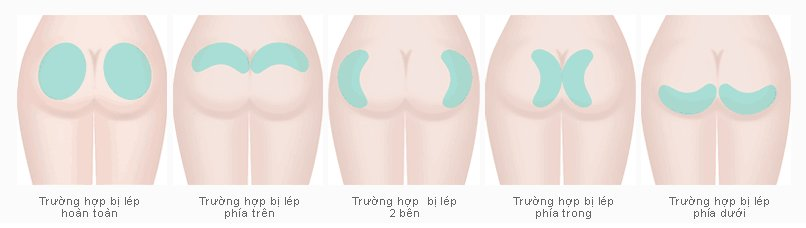 thẩm mỹ vòng 3 nội soi có kỹ thuật đặt túi độn mông như thế nào 2