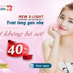 [OFF 40%] New E-light: Triệt lông gọn nhẹ – Diệt không bỏ sót