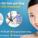 Khắc phục mụn thịt bằng công nghệ Laser CO2 Fractional