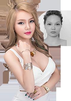 Minh Tuyết DJ sau phẫu thuật thẩm mỹ