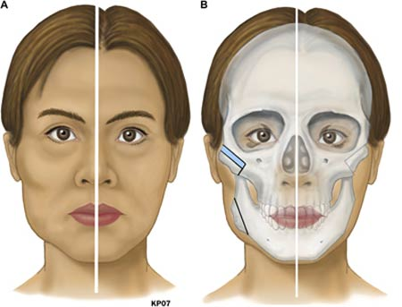 Phẫu thuật hạ gò má 3D 1