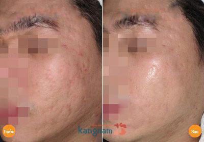 Hình ảnh trị sẹo tại Bệnh viện thẩm mỹ Kangnam11