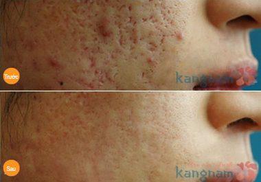 Hình ảnh trị sẹo tại Bệnh viện thẩm mỹ Kangnam66
