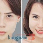 Kết quả khắc phục mụn thịt tại Kangnam (*)