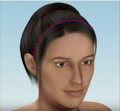 căng da mặt 3D 2