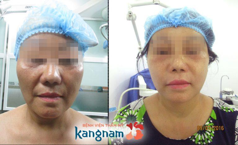 tại sao nên căng da mặt tại kangnam 6