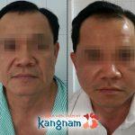 Tại sao bạn nên lựa chọn căng da mặt tại Kangnam?