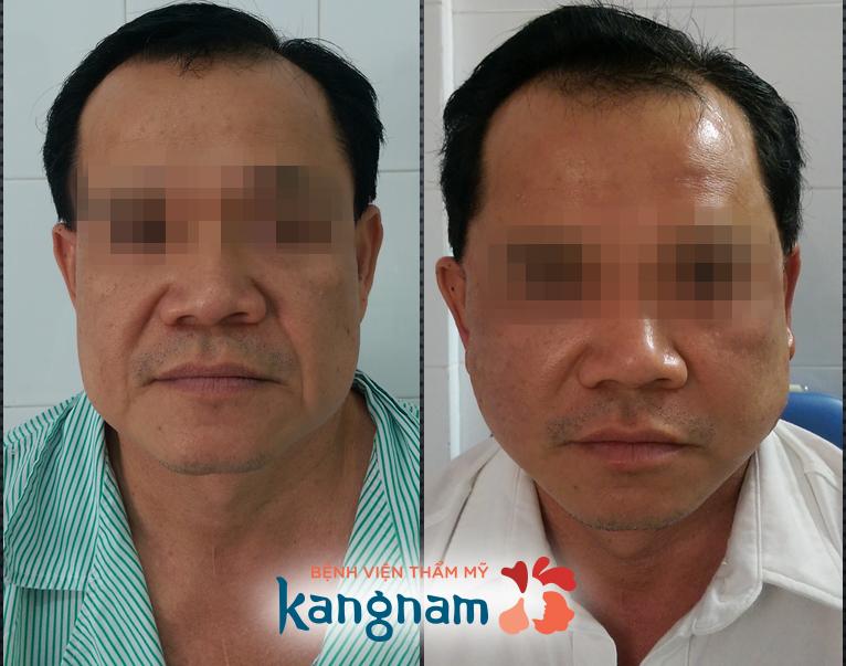 tại sao nên căng da mặt tại kangnam 5