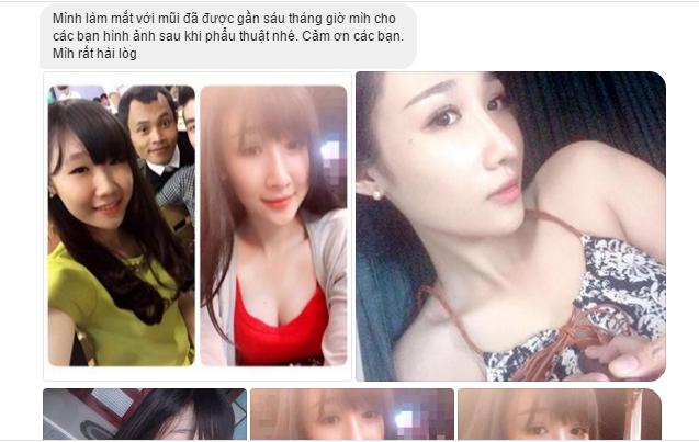 tham my vien kangnam co tot khong 5