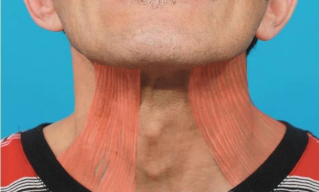 căng da cổ 3D 2