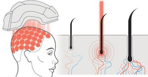 Hình ảnh tóc mọc lên rõ rệt sau quá trình cấy tóc sinh học1