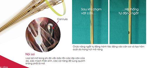 hút mỡ lipo matic 3d tại thẩm mỹ viện kangnam 5