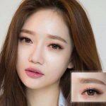 Xóa rãnh lệ – công nghệ Hàn Quốc trả lại vẻ đẹp thời xuân sắc