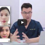 Video mô phỏng dịch vụ bấm mí Multi-Point