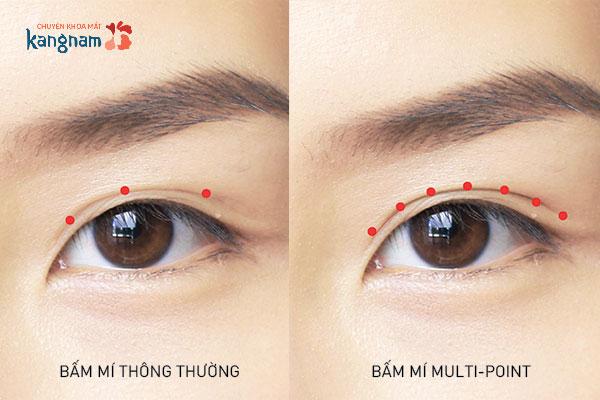 Công nghệ Bấm mí Multi-Point tạo mắt 2 mí với các điểm khóa chắc chắn1