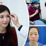 Cận cảnh bác sĩ chuyên khoa mắt tư vấn cắt mí Plasma cho khách hàng