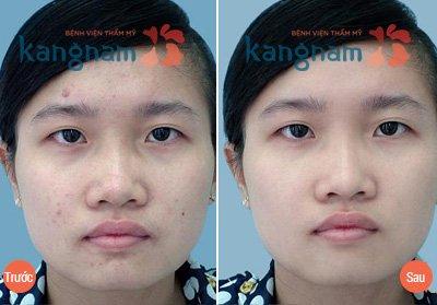 Hình ảnh khắc phục mụn Kangnam 9