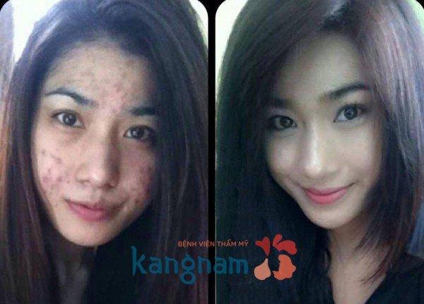 Hình ảnh khắc phục mụn Kangnam 16