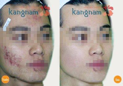 Hình ảnh khắc phục mụn Kangnam 4