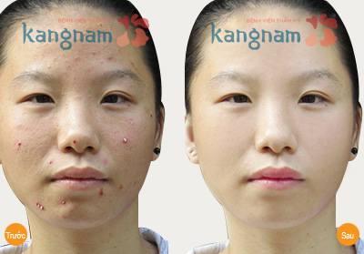 Hình ảnh khắc phục mụn Kangnam 6