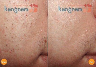 Hình ảnh khắc phục mụn Kangnam 7