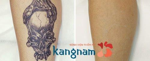 Hình ảnh xóa xăm tại Kangnam 11