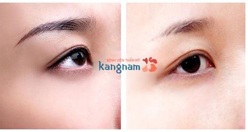 Hình ảnh xóa xăm tại Kangnam 14