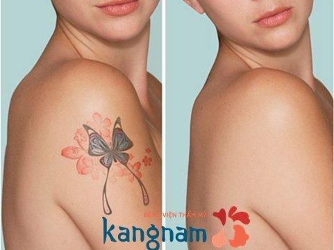 Hình ảnh xóa xăm tại Kangnam 5