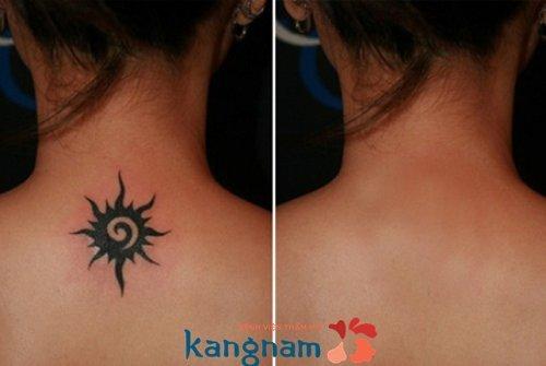 Hình ảnh xóa xăm tại Kangnam 9