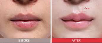 thu mỏng môi bao nhiêu tiền1