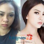 """Màn lột xác nhờ phẫu thuật thẩm mỹ """"gây sốt"""" của người mẫu Kim Anh"""