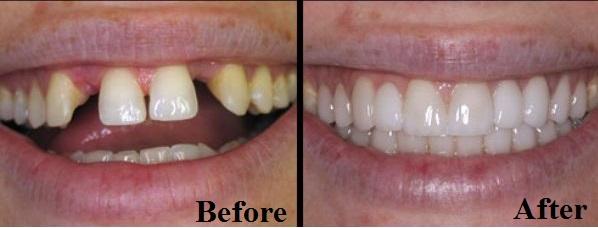 chỉnh răng kangnam