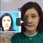 Video thực hiện combo cắt mí Plasma + nâng mũi tại Kangnam