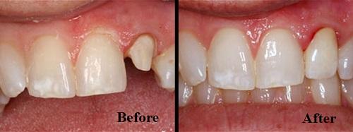 kết quả bọc răng sứ emax