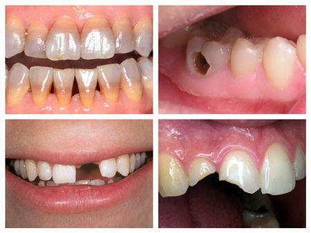 bọc răng sứ tại Kangnam323