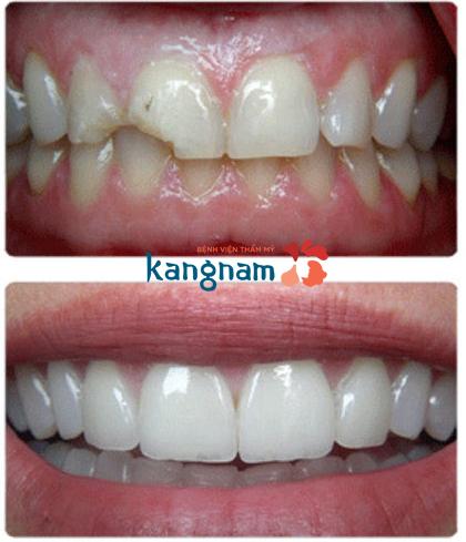bọc răng sứ tại Kangnam