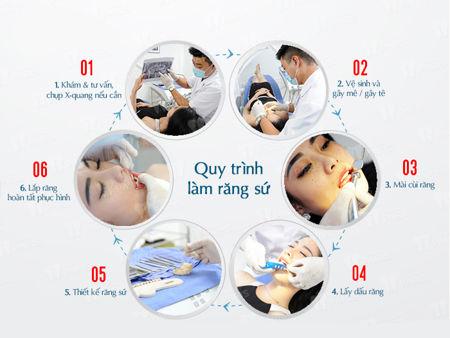 bọc răng sứ tại Kangnam565
