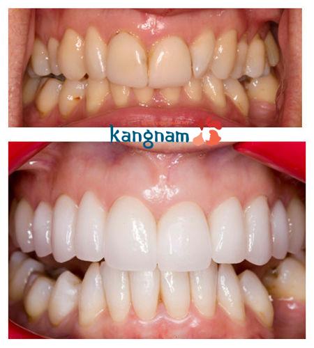 bọc răng sứ tại Kangnam877