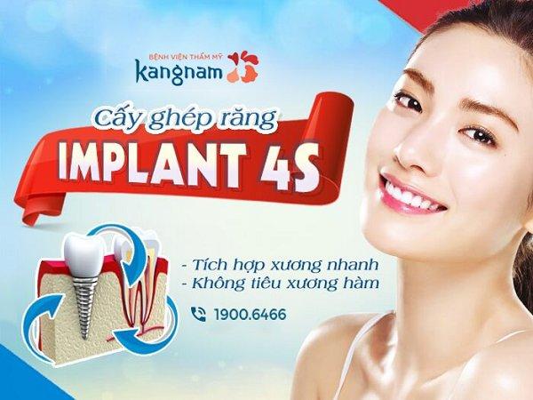Cấy ghép Implant thẩm mỹ 10