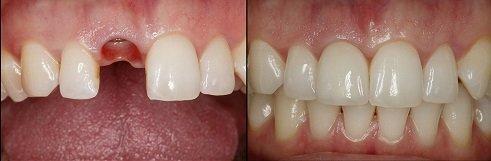 Cấy ghép Implant thẩm mỹ 5