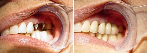 Cấy ghép Implant thẩm mỹ 8