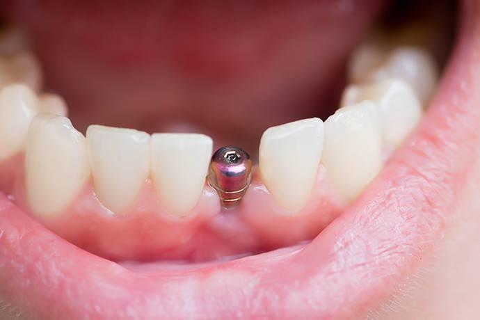 cấy ghép xương hàm 3