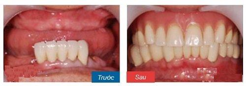 cấy ghép xương hàm 7