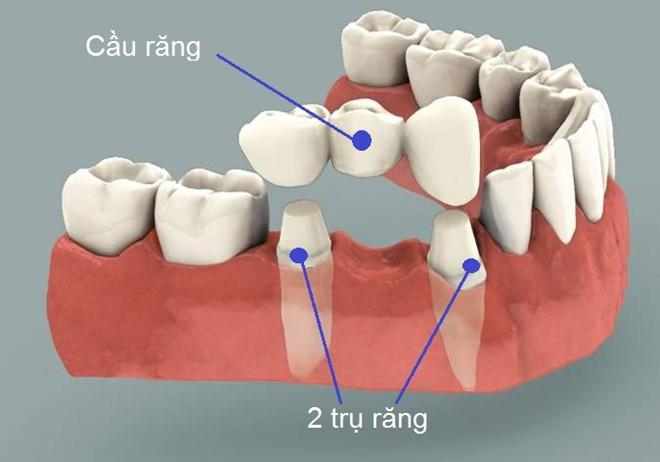 quy trình Làm cầu răng toàn sứ