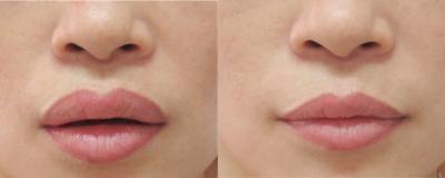 Có thể dễ dàng nhận thấy vùng môi sau khi hồi phục không hề để lại vết sẹo xấu(*)1