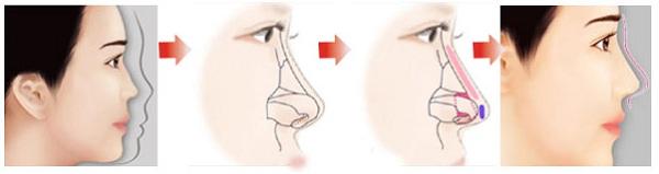 nâng mũi S line 4D